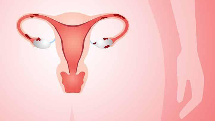 Endometriozis - Çikolata Kisti