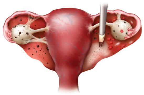Çikolata kisti (Endometriozis)